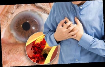 High cholesterol warning: Do your eyes look like this? Subtle sign of heart attack risk
