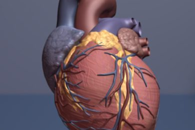 New CT scanning method may improve heart massage