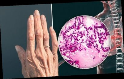 Lung cancer symptoms: Do your nails feel like this? Warning sign