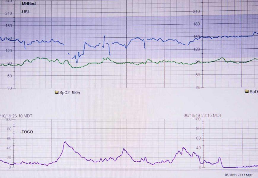 COVID-19 cardiac involvement on the rise