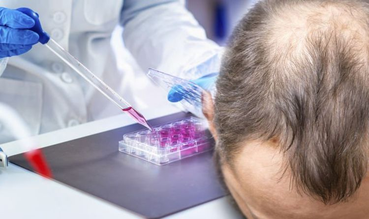 Hair loss treatment: Procedure to activate cells in hair follicles to increase hair growth