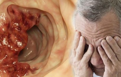 Bowel cancer: Severe fatigue which doesn't go away even after resting is a lesser-known si