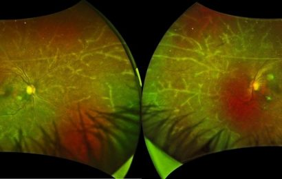 The natural artistry of disease: A wintry landscape in the eye