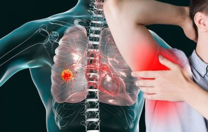 Lung cancer: Changes in your armpit could signal the deadly disease – what to look for