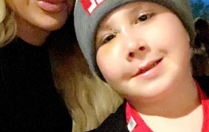 Kim Zolciak Reveals Son Kash Had Reconstructive Face Surgery 3 Years After Dog Bite Incident