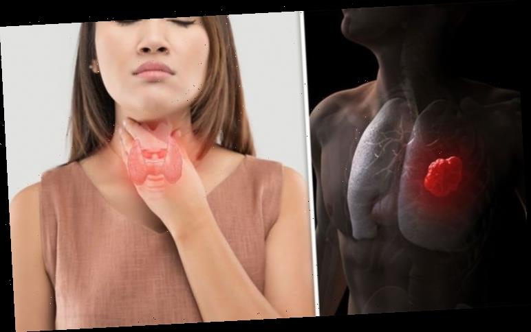 Lung cancer symptoms: A hoarse voice 'not a commonly known sign' of the disease