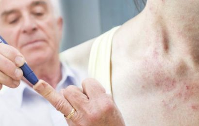 Type 2 diabetes: Blisters, skin tags, bumps and thickening skin could all be symptoms