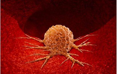 Acidosis and Tumor Progression