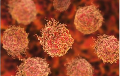 Gold Nanoparticles Use in Prostate Cancer