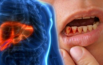 Fatty liver disease: Bleeding gums could indicate your risk of the deadly condition