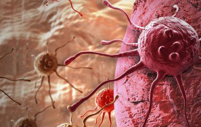 Cancer Management