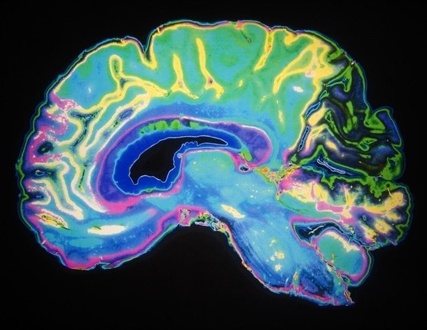 Researcher receives grant to study link between trauma and cellular, tissue damage in the brain