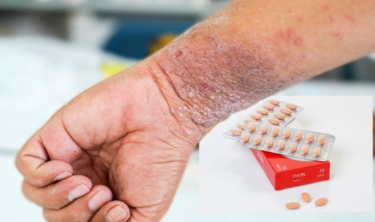 Statins side effects: Four skin changes to watch out for – 'scaly, oozing, encrusted'