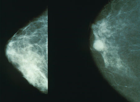 Common drugs for type 2 diabetes and obesity do not increase breast cancer risk
