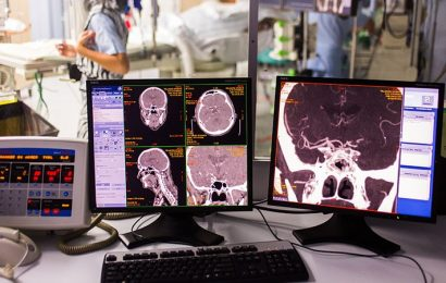 Cardiologists Can Perform Stroke Thrombectomy to Fill 'Unmet Need'