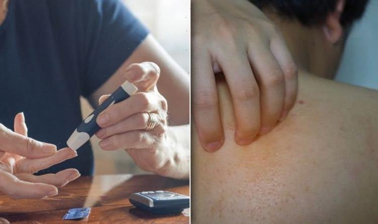 Diabetes symptoms warning: Three 'weird' signs of high blood sugar – 'Don't ignore'