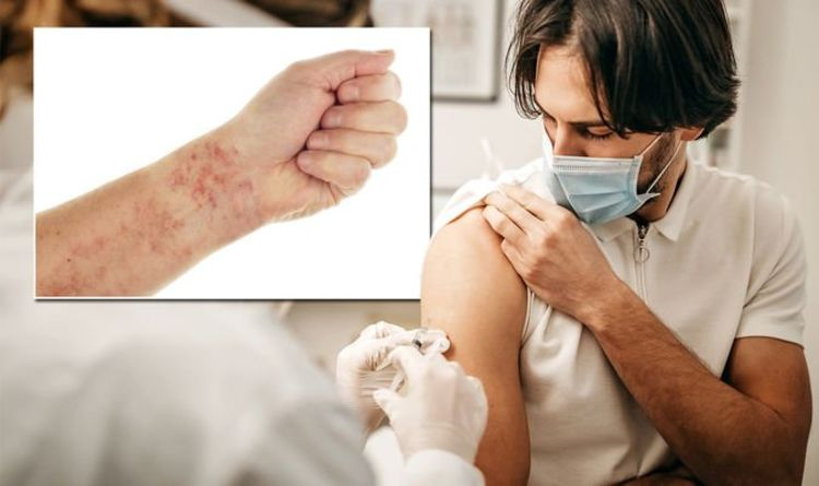 AstraZeneca vaccine may be linked to capillary leak syndrome – what are the symptoms?