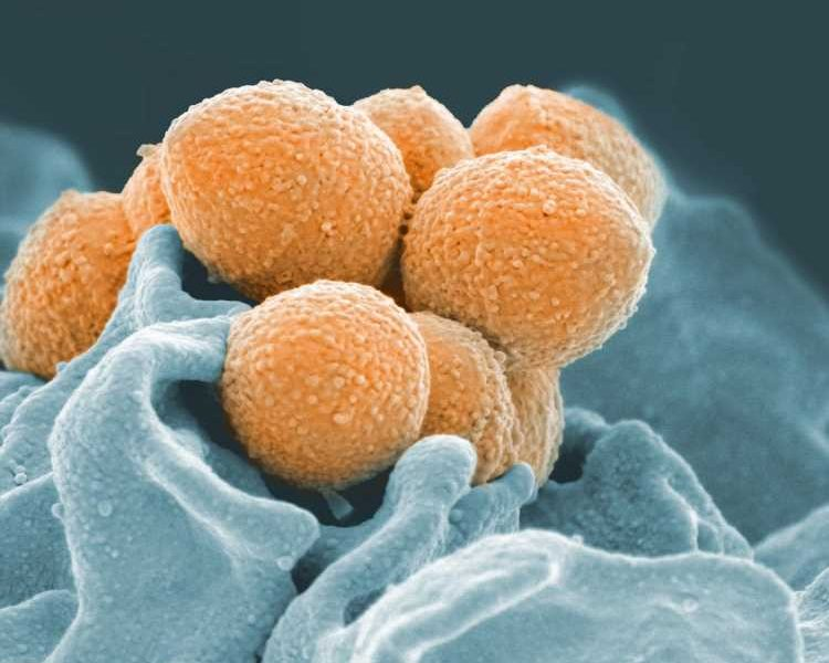 New Strep A human challenge model paves the way to test vaccines against the deadly bacteria