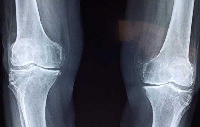 Researchers use AI to identify a new bone shape measure in knee osteoarthritis