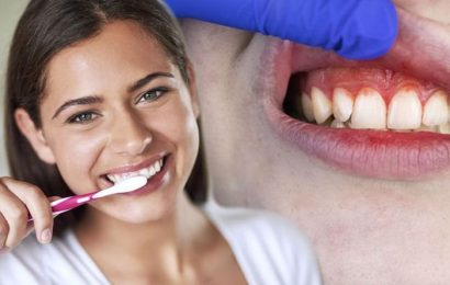 Teeth health: How to avoid medical emergencies at home – expert weighs in