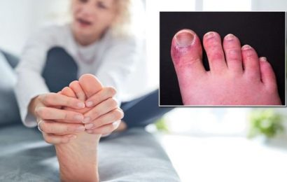 Covid symptoms: Signs in the feet to spot – from skin lesions to Guillain-Barre Syndrome