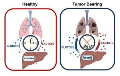 Loss of circadian regulation allows for increase in glucose production during lung cancer