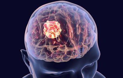 Research shines new light on deadly medulloblastoma metastases