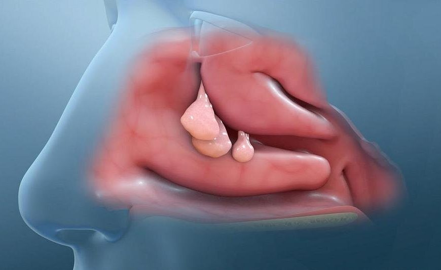 Researchers ID anti-inflammatory proteins as therapy targets for nasal and sinus problem