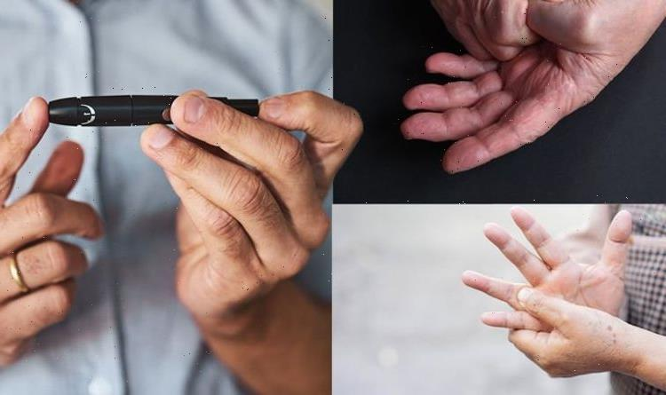 Diabetes type 2 symptoms: Three subtle warning signs of high blood sugar in your hands
