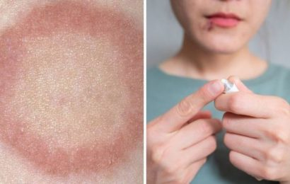 How to get rid of ringworm – the 6 ways to stop ringworm from spreading