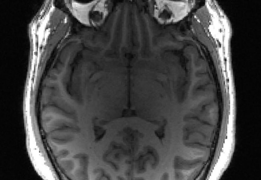 AI could detect dementia years before symptoms appear