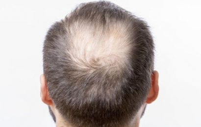 Does wearing a hat cause hair loss? Why you should avoid pressure on your head
