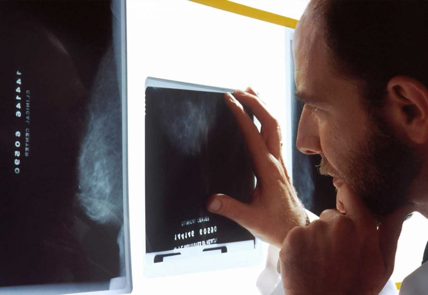 Fear of cancer recurrence remains for certain prostate cancer survivors long after treatment