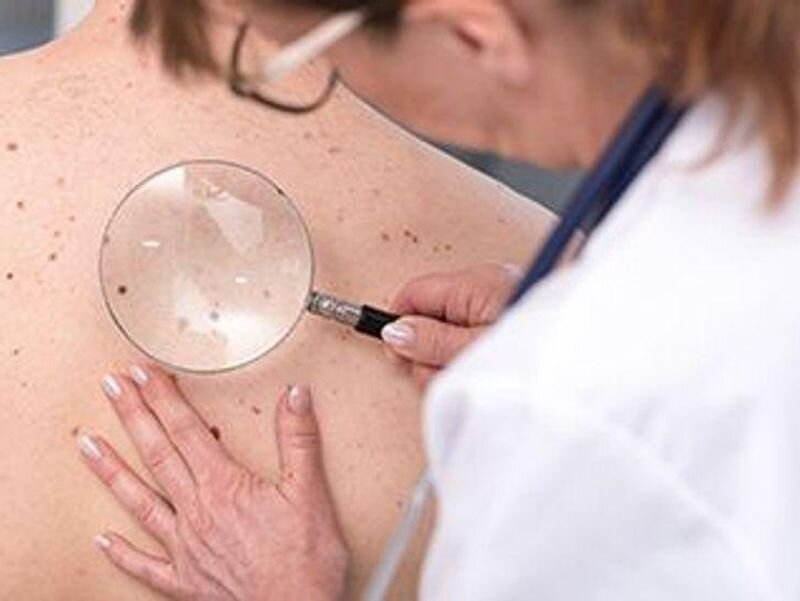 One key question can help spot skin cancer