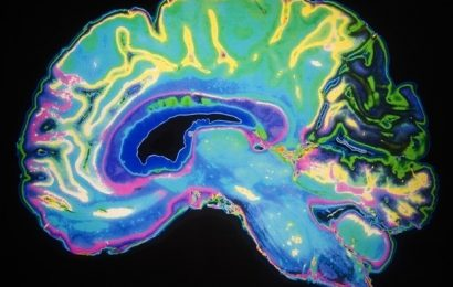 Scientists develop new approach to identify proteins in the living brain