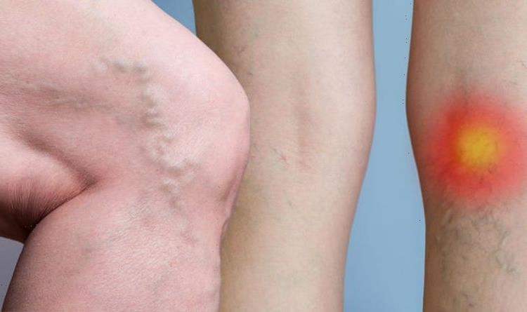Blood clot symptoms: Five telltale signs in your leg of a blood clot to watch out for