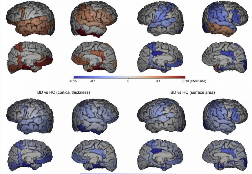 Manic episodes in bipolar disorder linked to abnormal brain changes